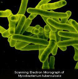Bactéries à l'origine de la tuberculose